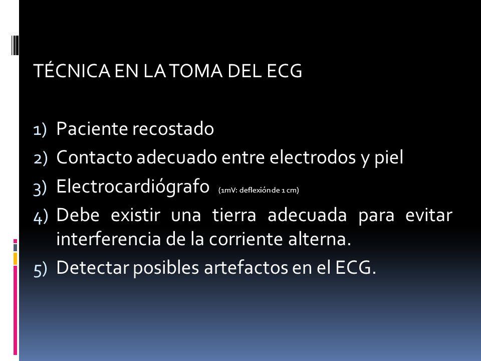 TÉCNICA EN LA TOMA DEL ECG