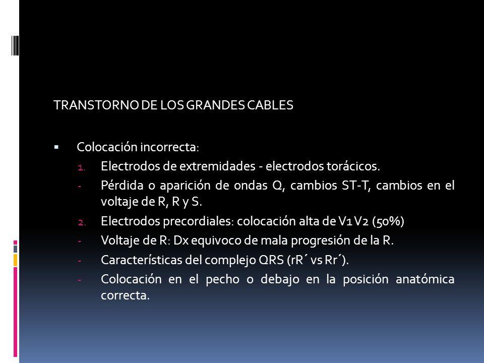 TRANSTORNO DE LOS GRANDES CABLES