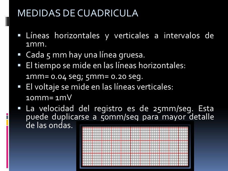 MEDIDAS DE CUADRICULA Líneas horizontales y verticales a intervalos de 1mm. Cada 5 mm hay una línea gruesa.