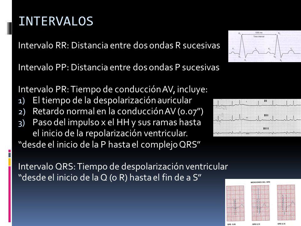 INTERVALOS Intervalo RR: Distancia entre dos ondas R sucesivas