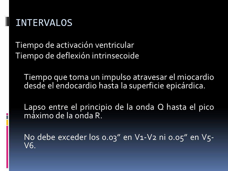 INTERVALOS Tiempo de activación ventricular