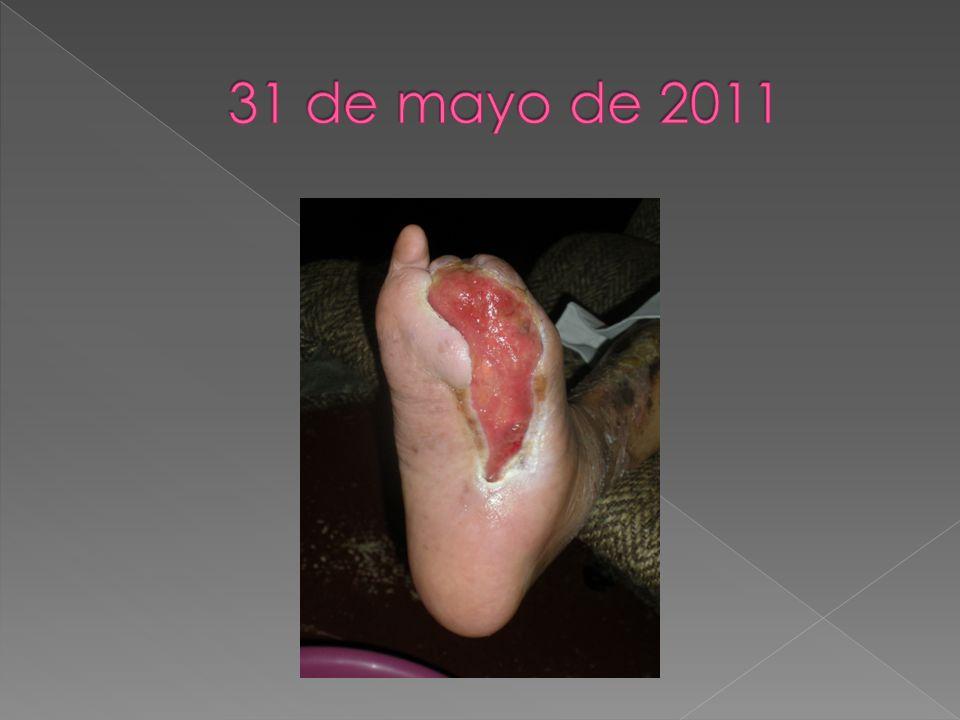 31 de mayo de 2011