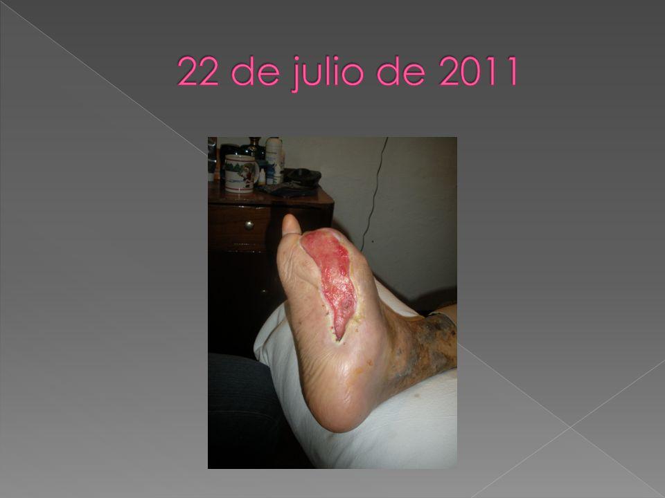 22 de julio de 2011