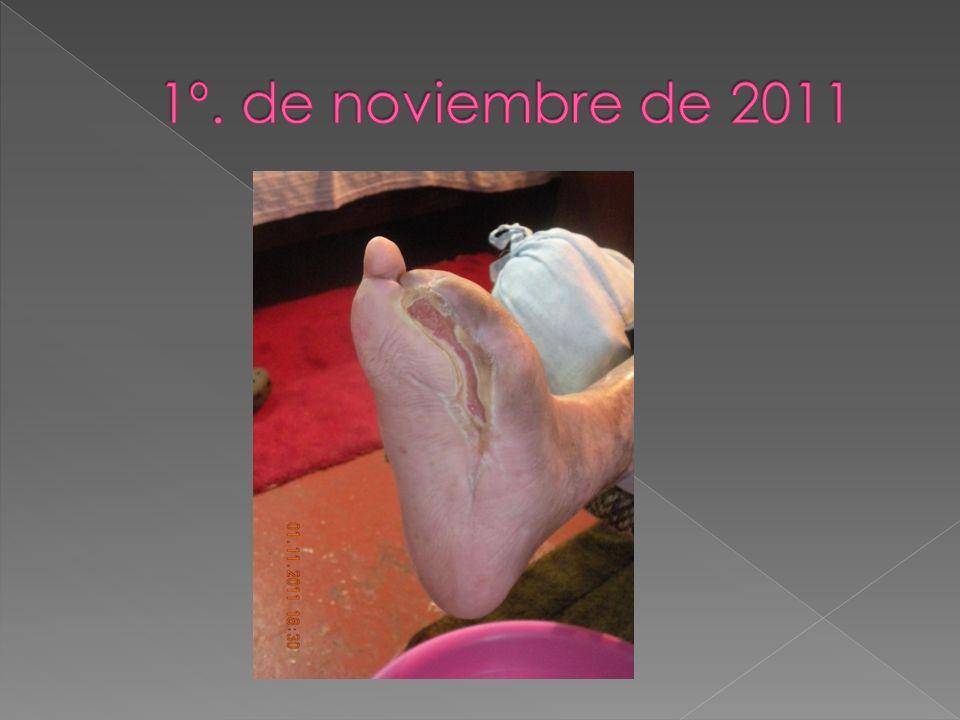 1º. de noviembre de 2011