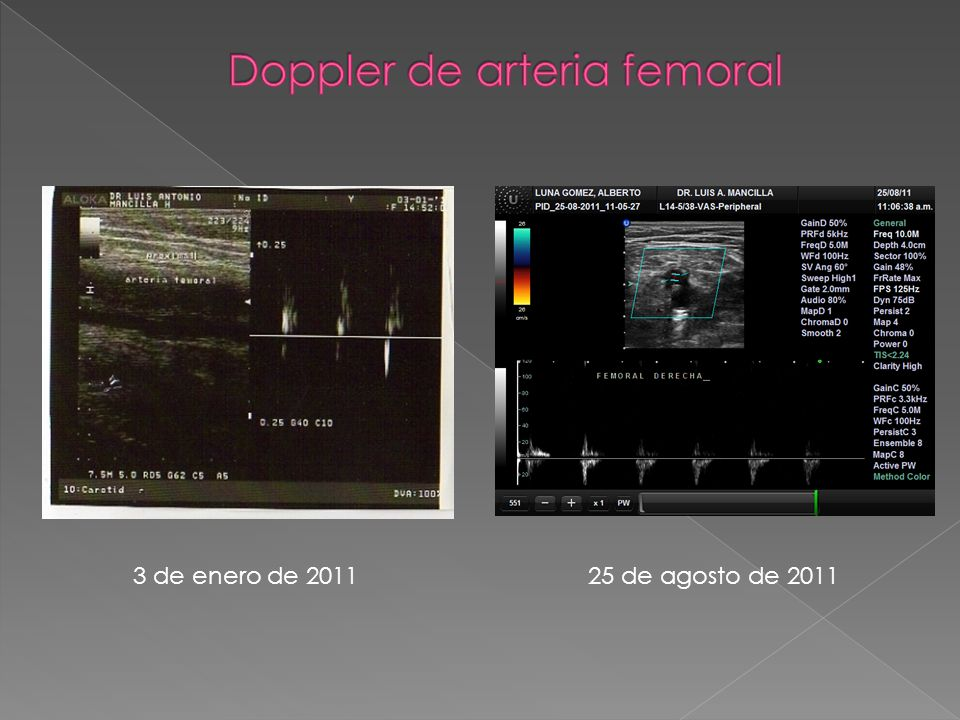 Doppler de arteria femoral