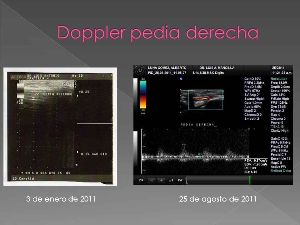 Doppler pedia derecha 3 de enero de 2011 25 de agosto de 2011