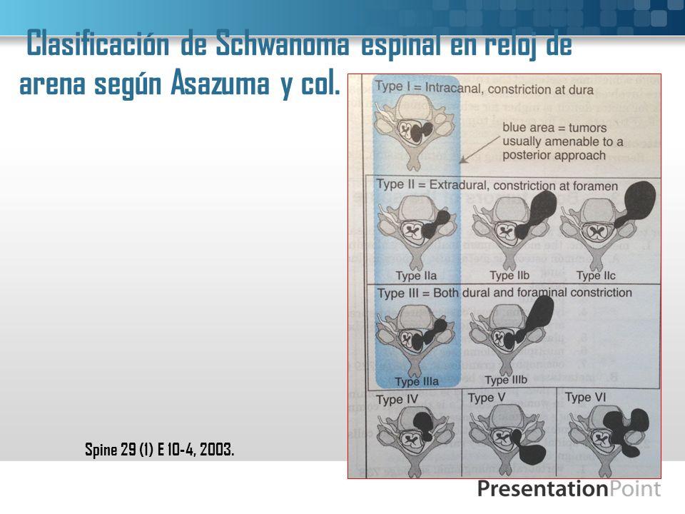 Clasificación de Schwanoma espinal en reloj de arena según Asazuma y col.