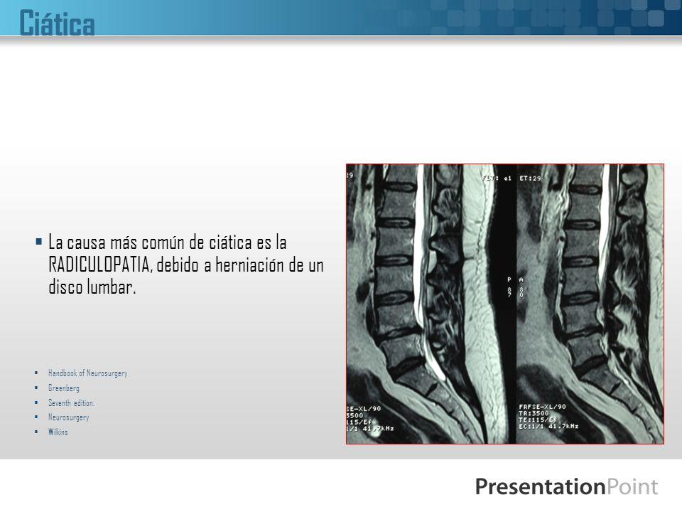 Ciática La causa más común de ciática es la RADICULOPATIA, debido a herniación de un disco lumbar. Handbook of Neurosurgery.