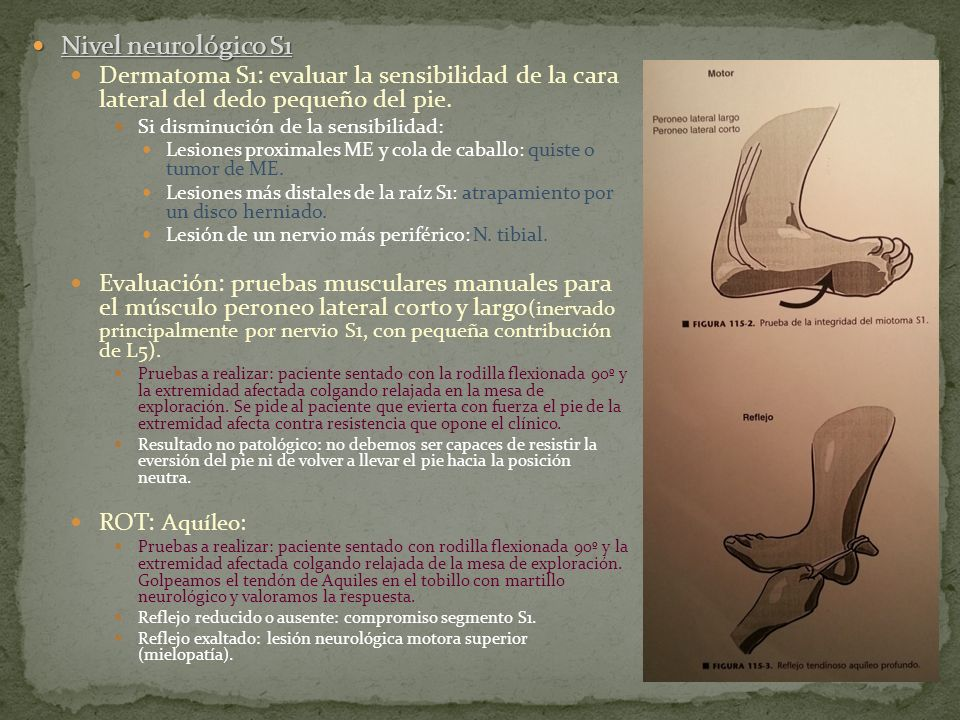 Nivel neurológico S1 Dermatoma S1: evaluar la sensibilidad de la cara lateral del dedo pequeño del pie.