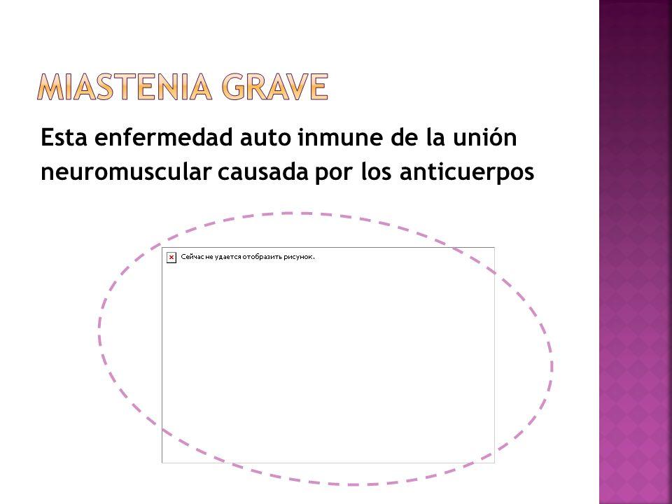Miastenia grave Esta enfermedad auto inmune de la unión neuromuscular causada por los anticuerpos
