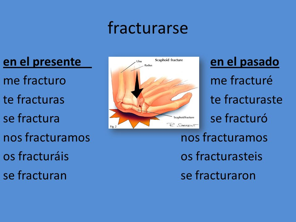 fracturarse