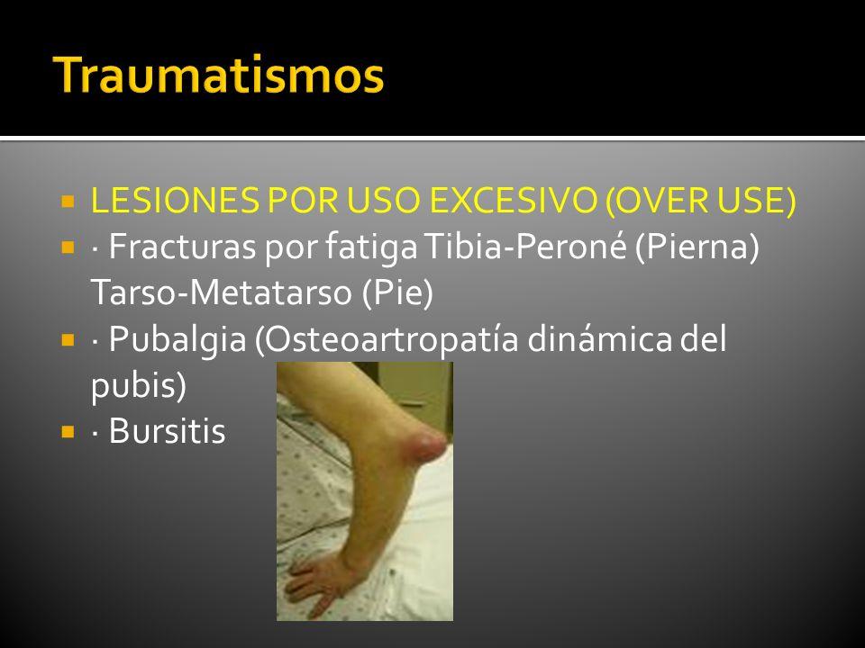Traumatismos LESIONES POR USO EXCESIVO (OVER USE)