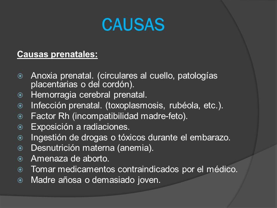 CAUSAS Causas prenatales: