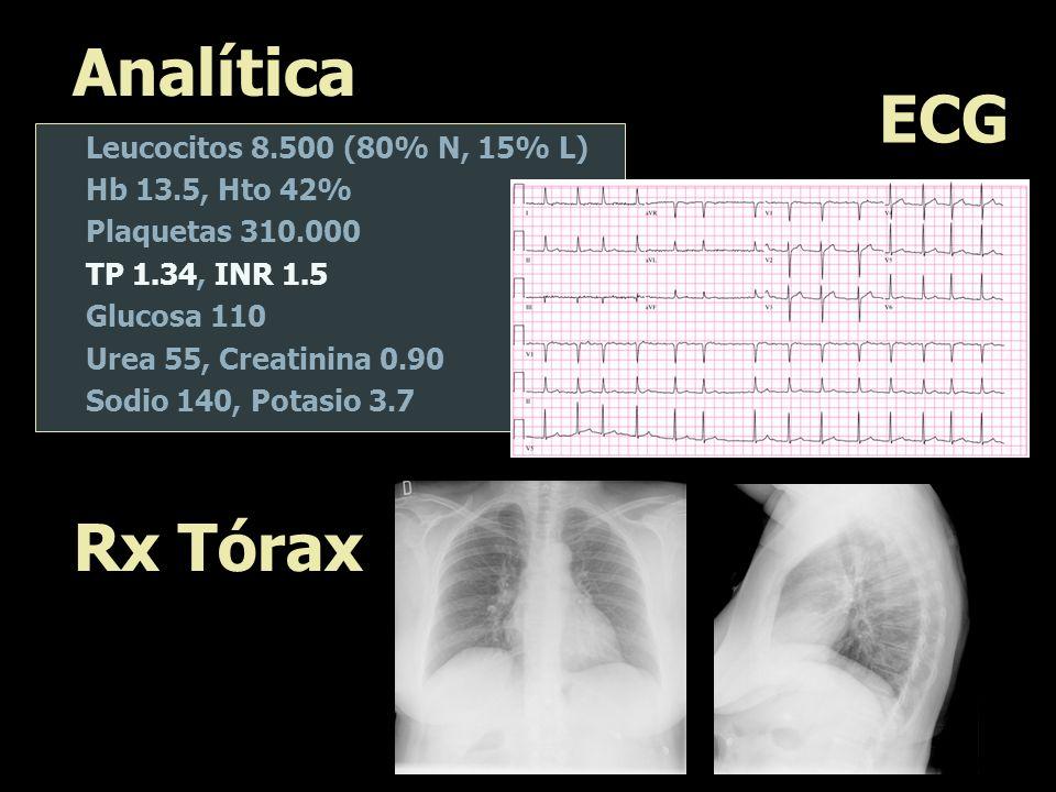 Analítica ECG Rx Tórax Leucocitos 8.500 (80% N, 15% L)