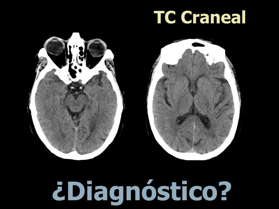 TC Craneal Ventriculomegàlia. Megacisterna magna. ¿Diagnóstico