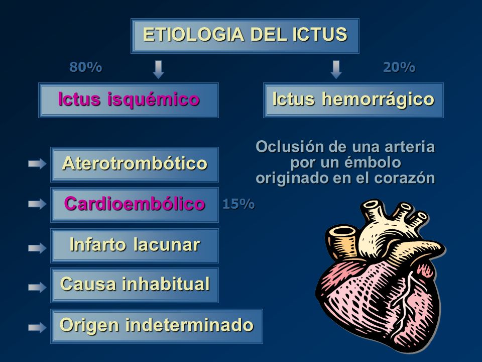 Oclusión de una arteria por un émbolo originado en el corazón