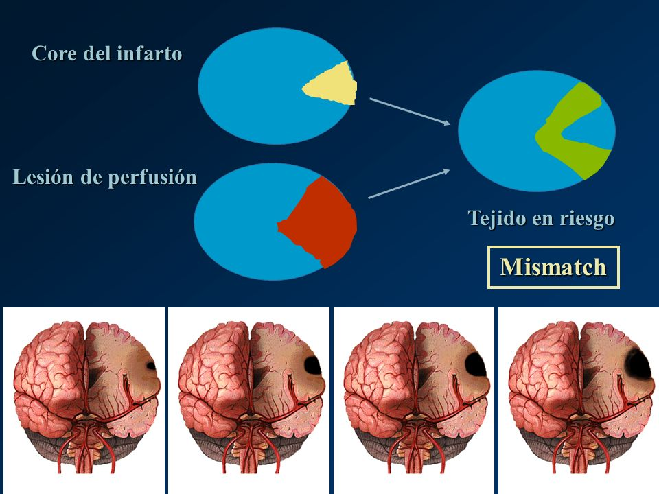 Mismatch Core del infarto Lesión de perfusión Tejido en riesgo