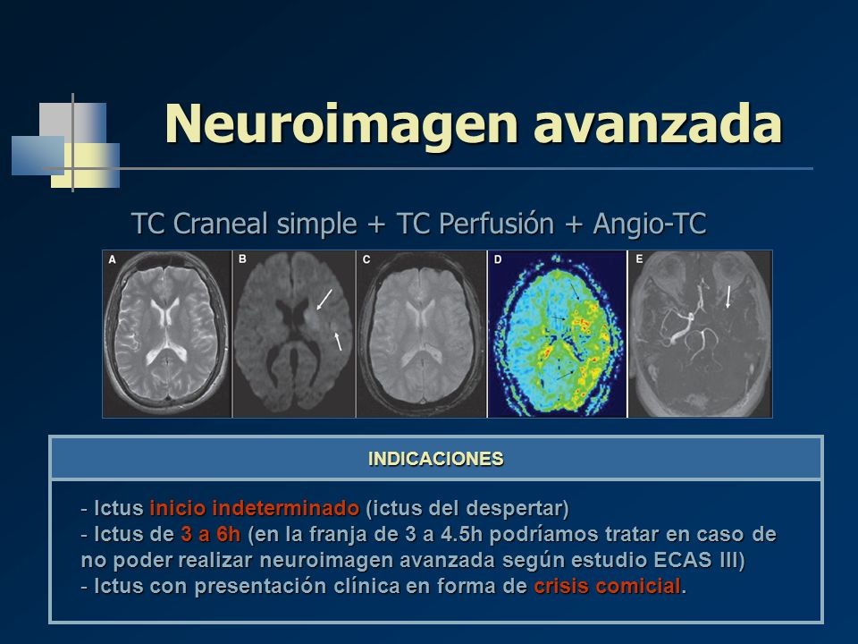 TC Craneal simple + TC Perfusión + Angio-TC