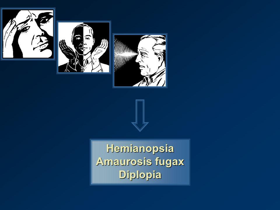 Hemianopsia Amaurosis fugax Diplopia