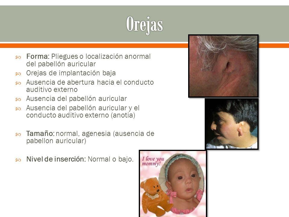 Orejas Forma: Pliegues o localización anormal del pabellón auricular