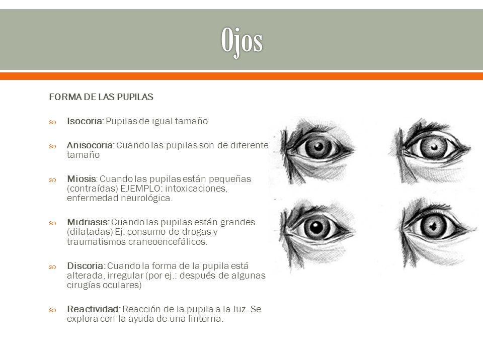 Ojos FORMA DE LAS PUPILAS Isocoria: Pupilas de igual tamaño