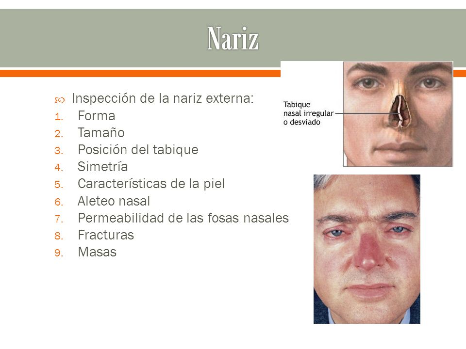 Nariz Inspección de la nariz externa: Forma Tamaño