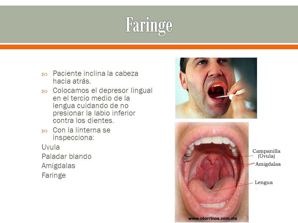 Faringe Paciente inclina la cabeza hacia atrás.