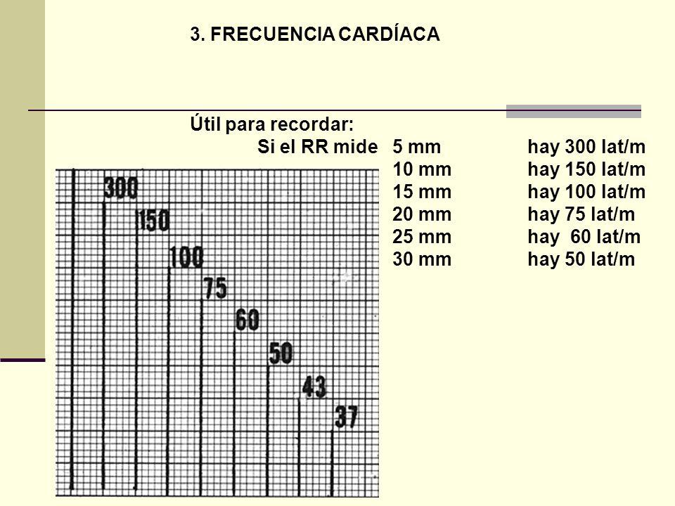 3. FRECUENCIA CARDÍACA Útil para recordar: Si el RR mide 5 mm hay 300 lat/m. 10 mm hay 150 lat/m.