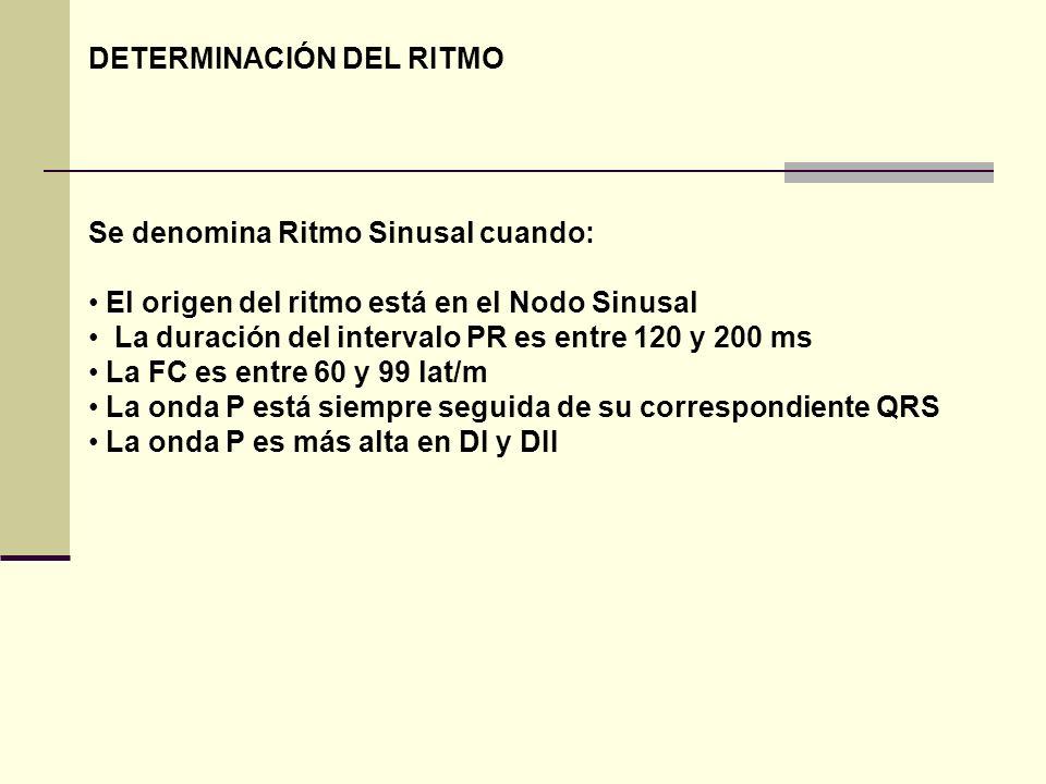 DETERMINACIÓN DEL RITMO