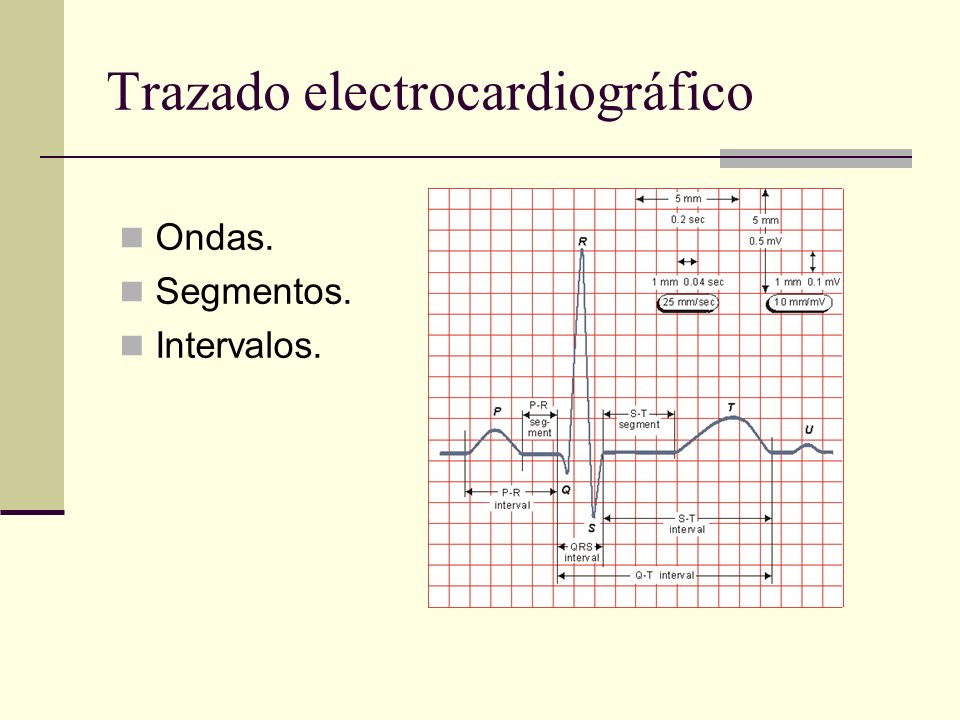 Trazado electrocardiográfico