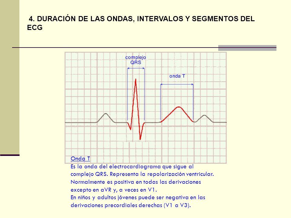 4. DURACIÓN DE LAS ONDAS, INTERVALOS Y SEGMENTOS DEL ECG