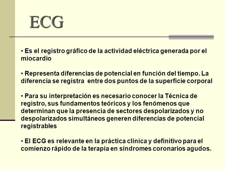 ECG Es el registro gráfico de la actividad eléctrica generada por el miocardio.