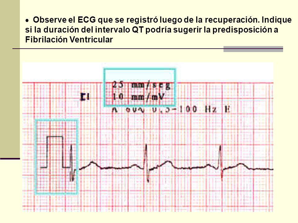 Observe el ECG que se registró luego de la recuperación