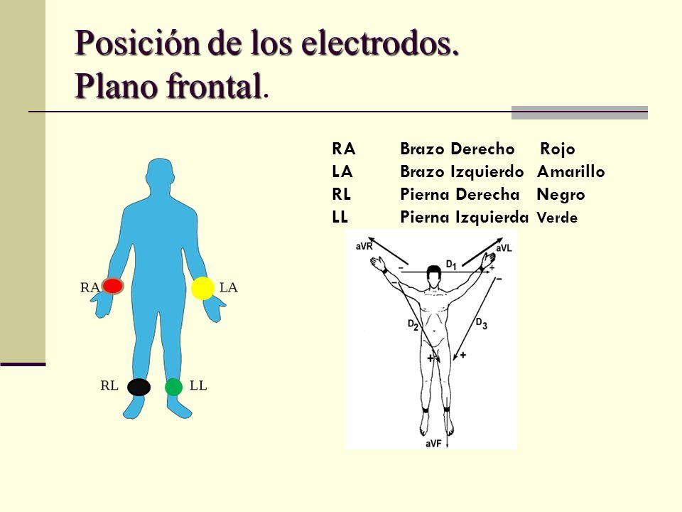 Posición de los electrodos. Plano frontal.