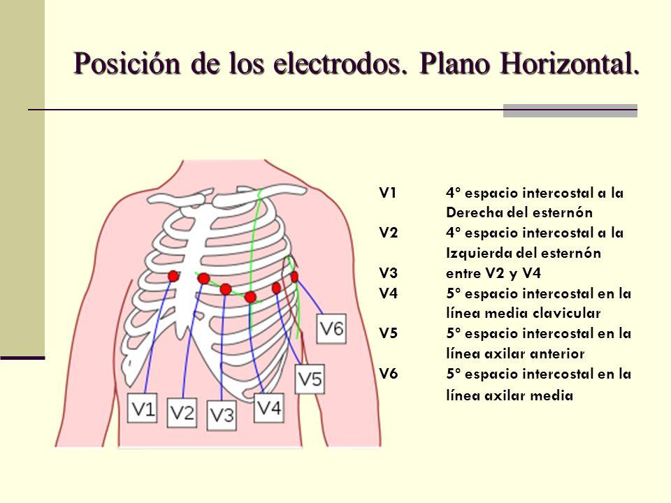 Posición de los electrodos. Plano Horizontal.