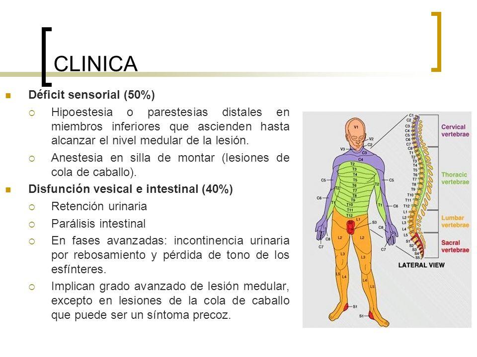 CLINICA Déficit sensorial (50%)
