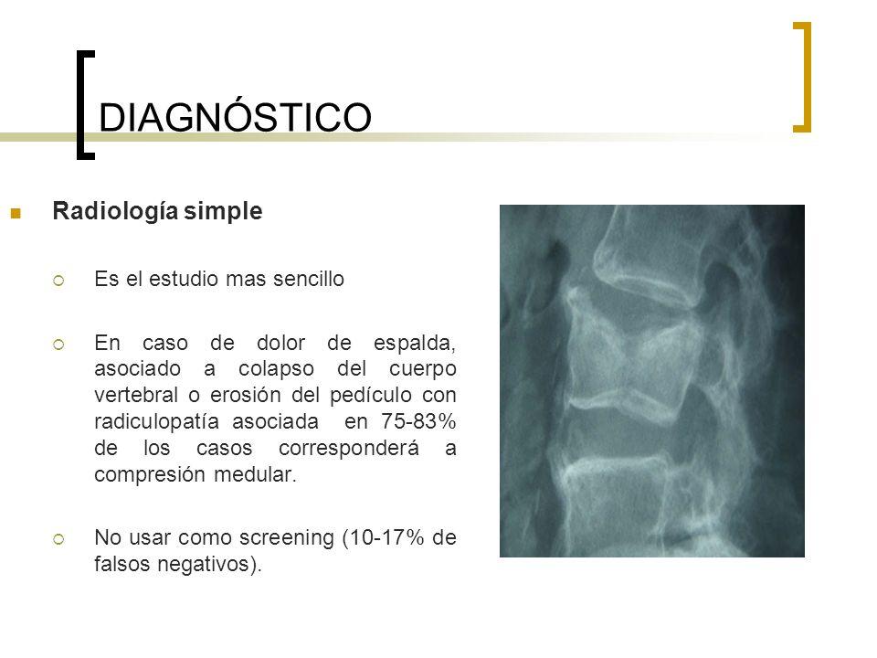 DIAGNÓSTICO Radiología simple Es el estudio mas sencillo