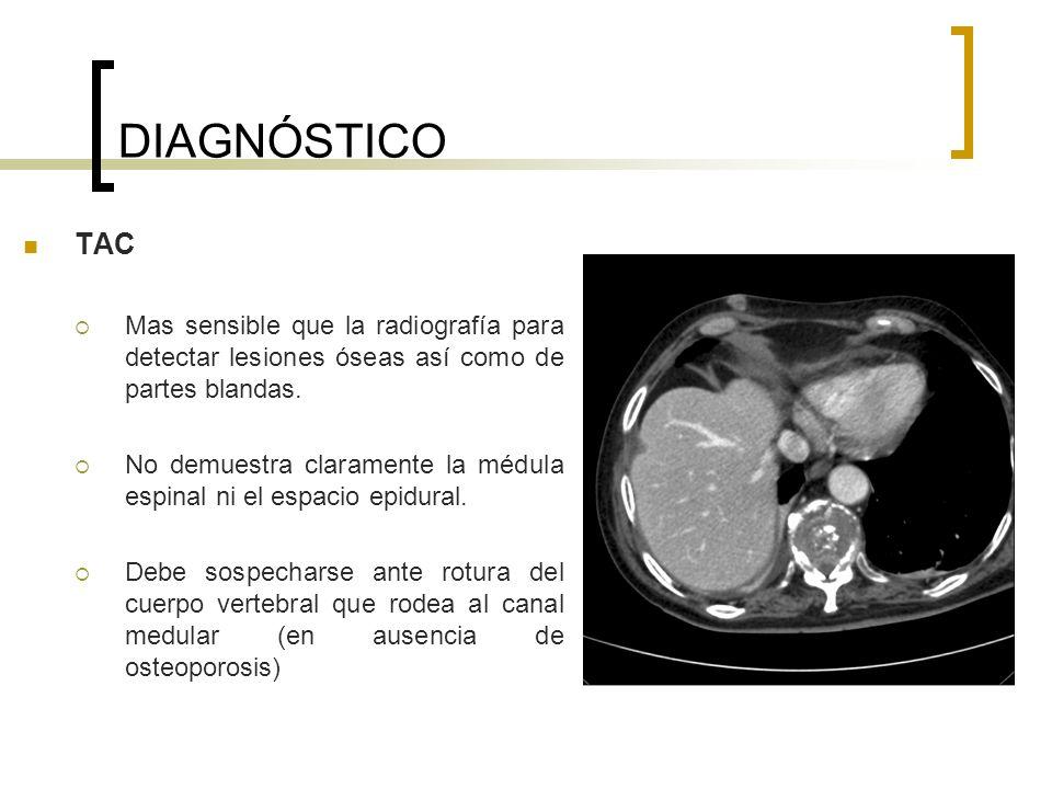 DIAGNÓSTICO TAC. Mas sensible que la radiografía para detectar lesiones óseas así como de partes blandas.