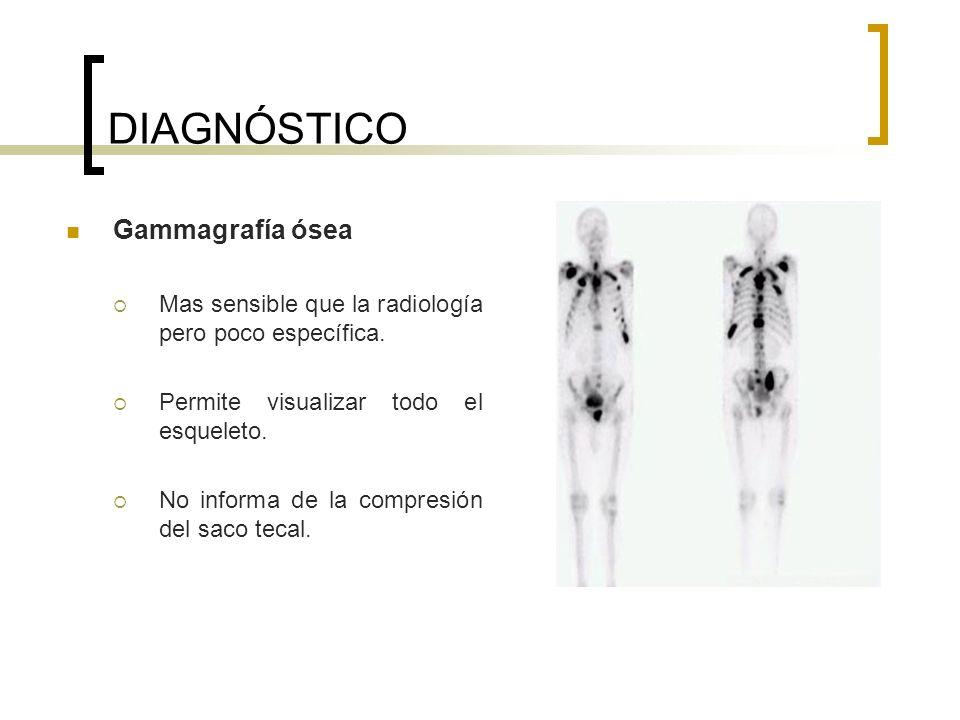 DIAGNÓSTICO Gammagrafía ósea