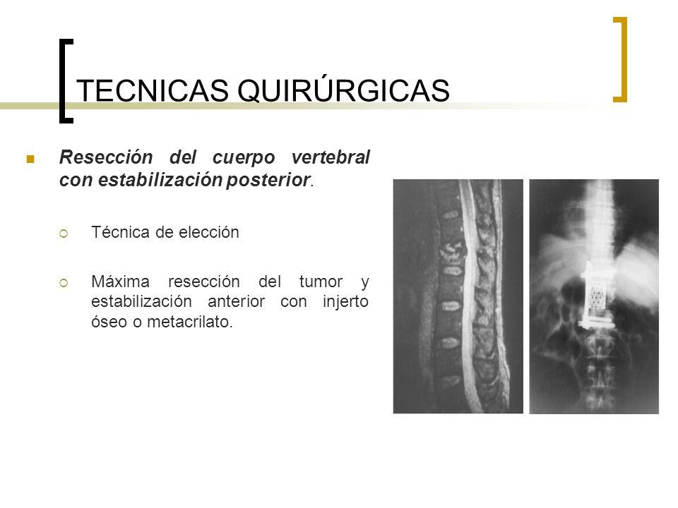 TECNICAS QUIRÚRGICAS Resección del cuerpo vertebral con estabilización posterior. Técnica de elección.