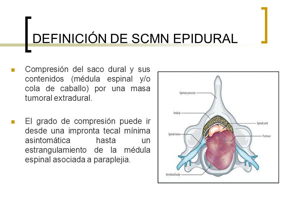 DEFINICIÓN DE SCMN EPIDURAL