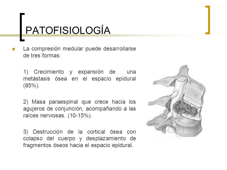PATOFISIOLOGÍA La compresión medular puede desarrollarse de tres formas: