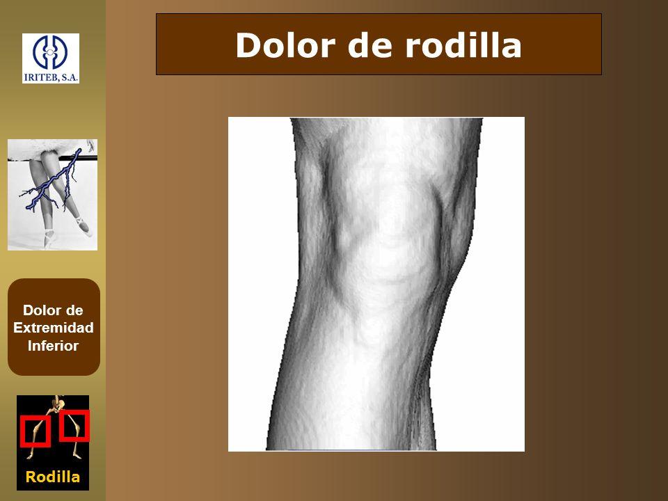 Dolor de rodilla Rodilla