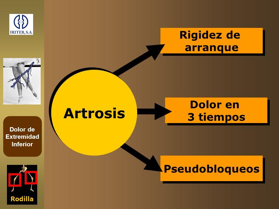 Rigidez de arranque Artrosis Dolor en 3 tiempos Pseudobloqueos Rodilla