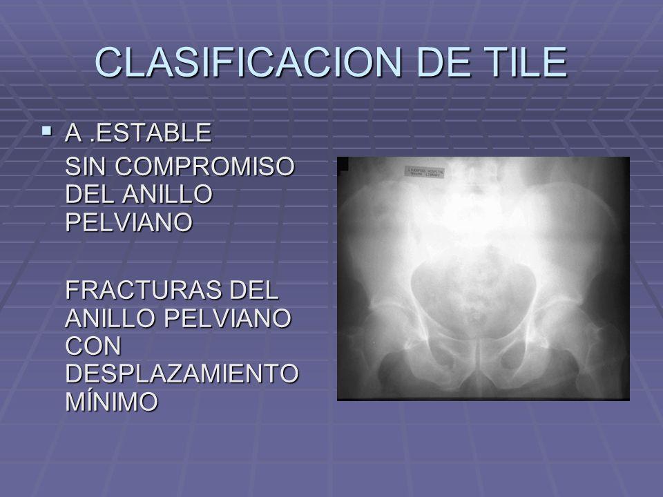 CLASIFICACION DE TILE A .ESTABLE SIN COMPROMISO DEL ANILLO PELVIANO