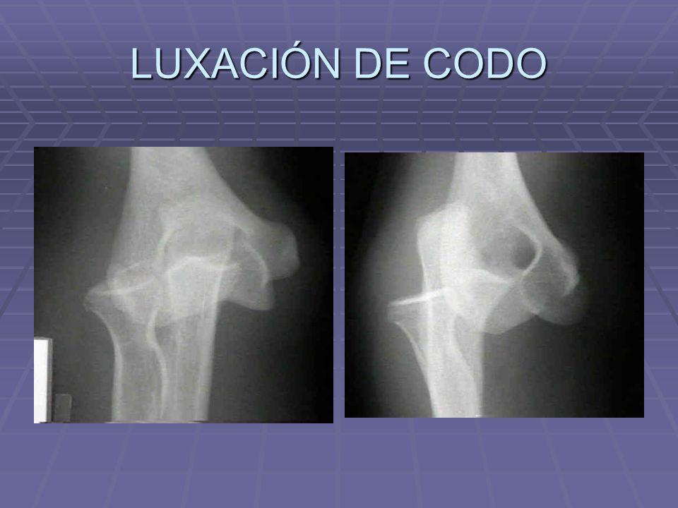 LUXACIÓN DE CODO