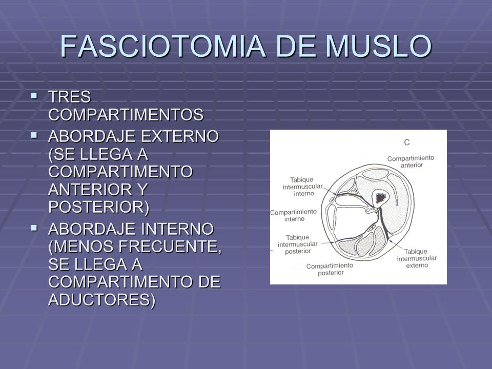 FASCIOTOMIA DE MUSLO TRES COMPARTIMENTOS