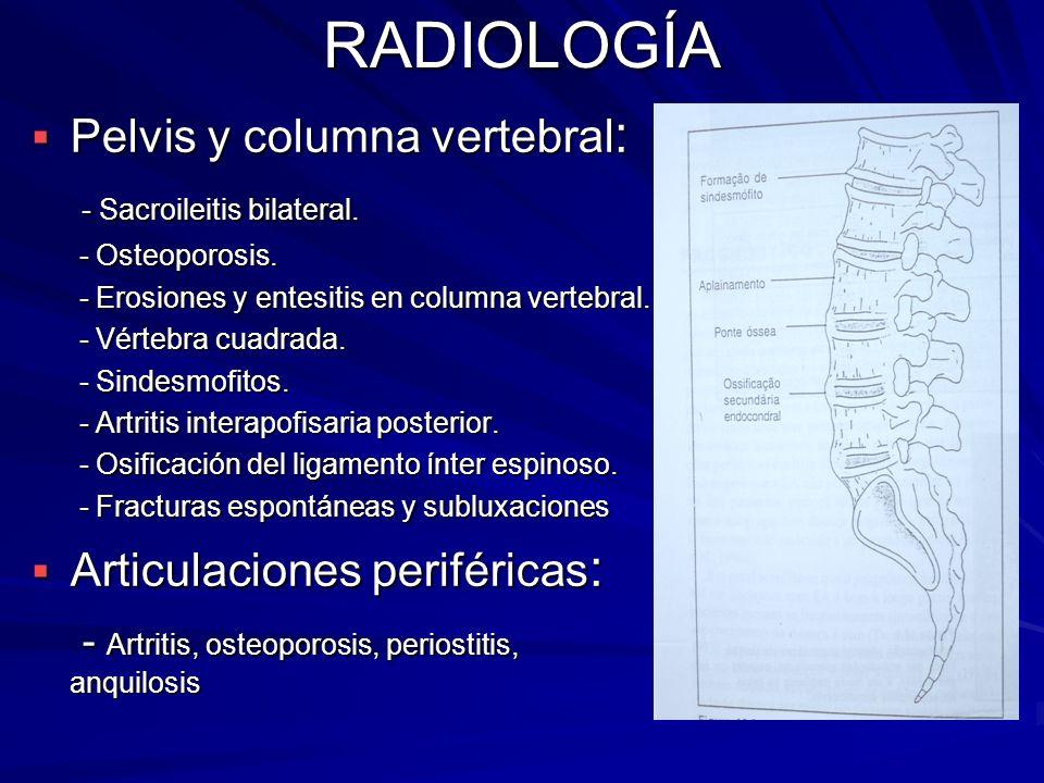 RADIOLOGÍA Pelvis y columna vertebral: - Sacroileitis bilateral.