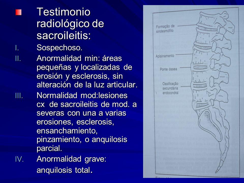Testimonio radiológico de sacroileitis: