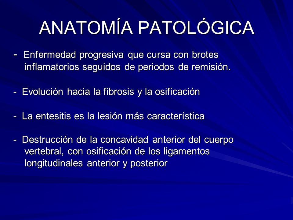 ANATOMÍA PATOLÓGICA - Enfermedad progresiva que cursa con brotes inflamatorios seguidos de periodos de remisión.